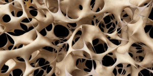 Osteoporosis Meaning in Hindi, Osteoporosis Treatment in Hindi