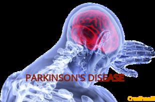 Tips & Trick for Parkinson Caregiver