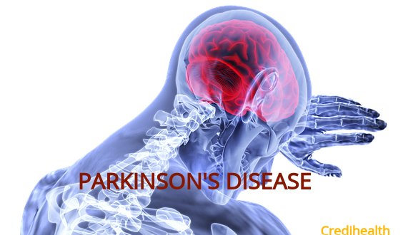 Tips & Trick for Parkinson Caregiver