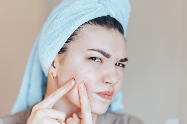 How to Remove Pimples, Pimple Treatment, How to get rid of Pimples, How to remove pimple marks, Home remedies for pimples