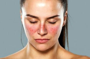 Systemic Lupus Erythematosus, Lupus meaning, Lupus symptoms, what causes lupus, lupus treatment