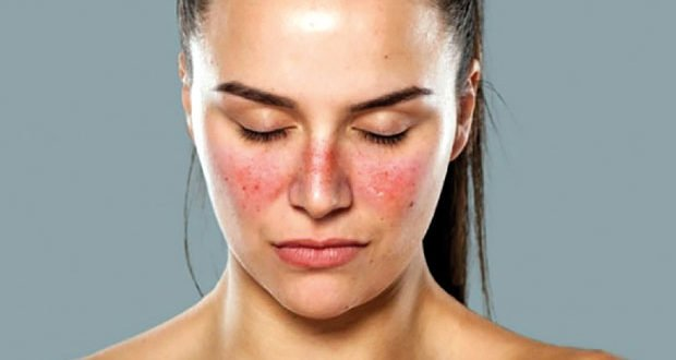 Systemic Lupus Erythematosus, Lupus meaning, Lupus symptoms, what causes lupus, lupus treatment