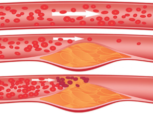 atherosclerosis, atherosclerosis symptoms, atherosclerosis treatment, coronary atherosclerosis, atherosclerosis causes
