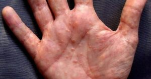 Palm Indicates Signs of Diseases