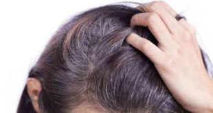 How to get rid of white hair, white hair solution, white hair causes, home remedies for white hair
