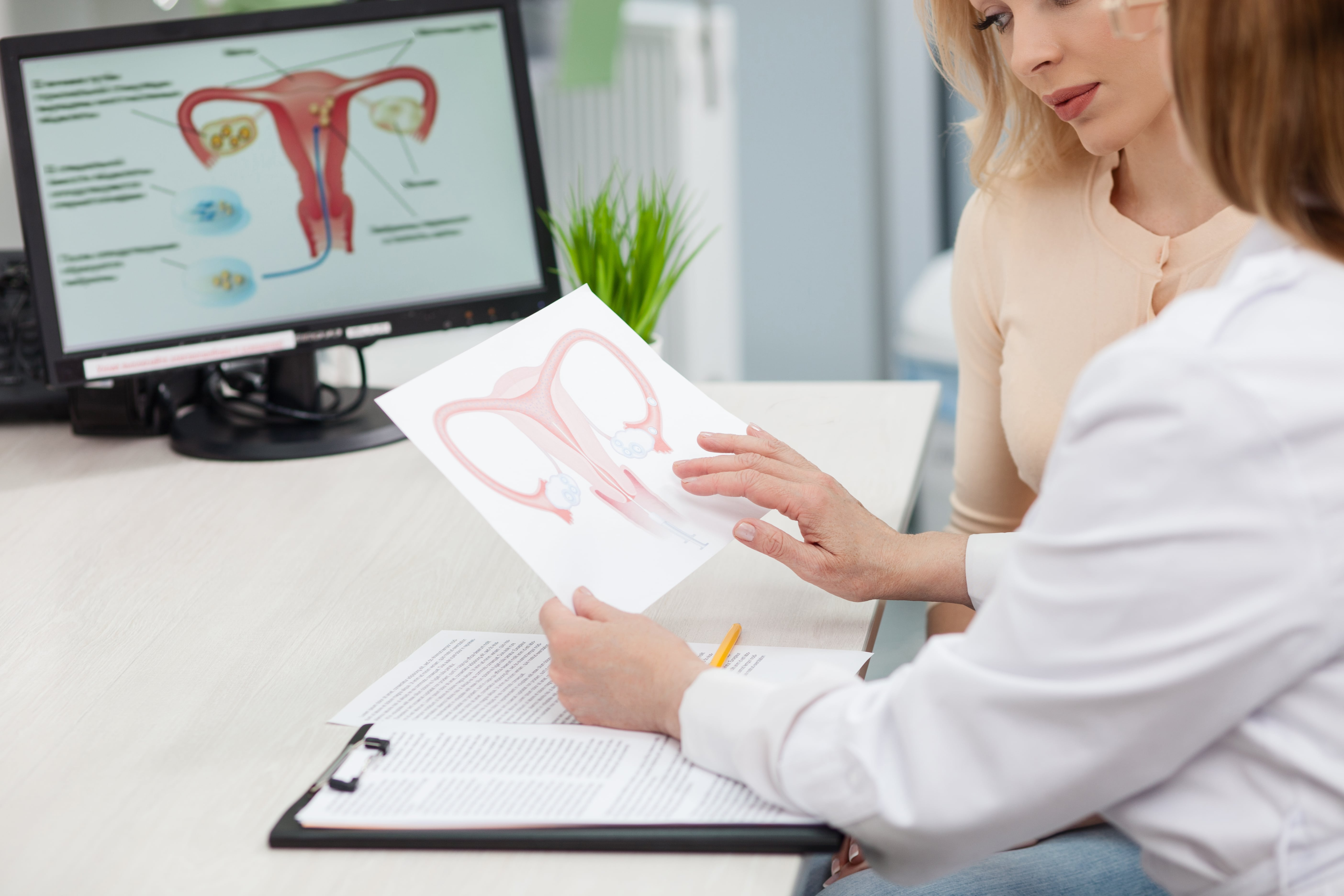 Gynaecological Diseases