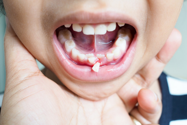 Common dental mistakes