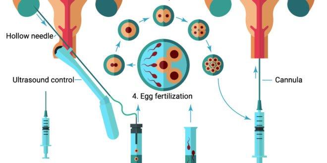 IVF Steps
