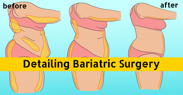 Detailing Bariatric Surgery