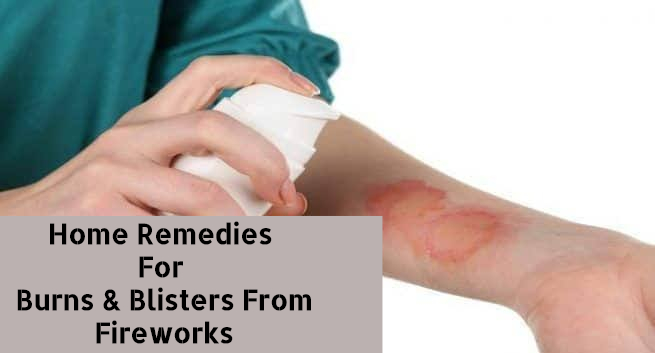 Home Remedies For Burns and Blisters From Firework