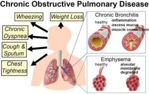 COPD, World COPD Day 2019, World COPD Day