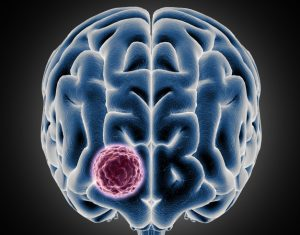 3d medical showing brain with tumor growing 1048 10836 e1579590687863 300x235