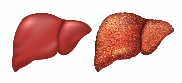 Cirrhosis of the liver, liver cirrhosis symptoms, cirrhosis of the liver treatments, liver cirrhosis treatment