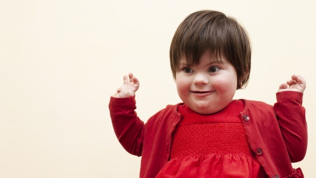 Down Syndrome, Down Syndrome Symptoms, Down Syndrome Treatment
