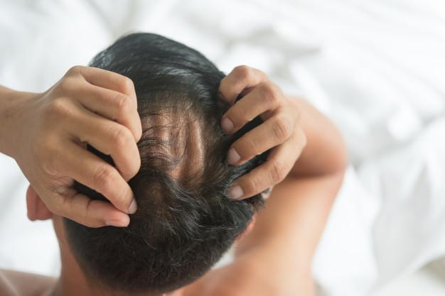 Finasteride, Male Pattern Hair Loss