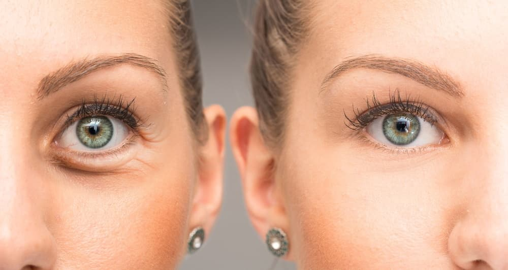 botox around eyes