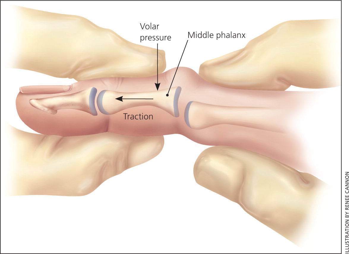 Articular fractures