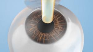 Eye 300x169