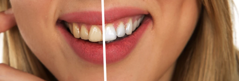 Professional-teeth-whitening-services