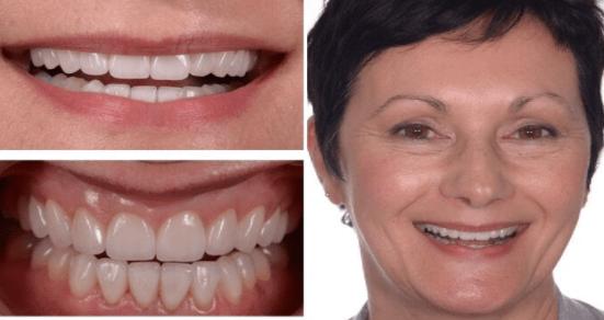 dentistry for drug addicts